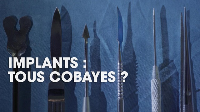 IMPLANTS: TOUS COBAYES ?